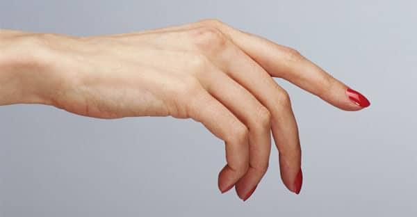 Аллергическая экзема на руках