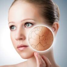 Экзема на лице: симптомы заболевания и его лечение
