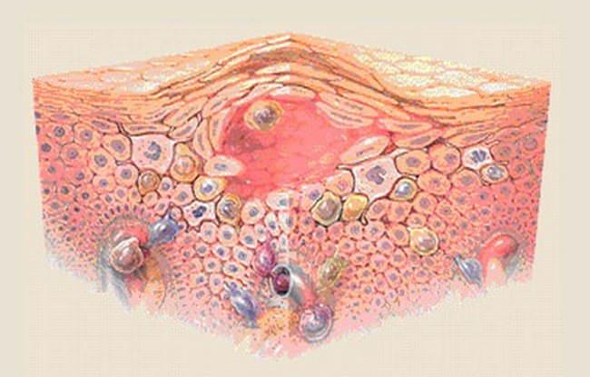 Лечение себорейной экземы