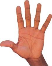 Сухая экзема на руках