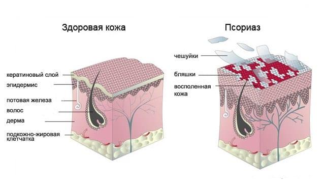 Симптомы и формы псориаза
