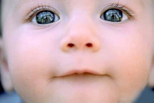 картина детского дерматита