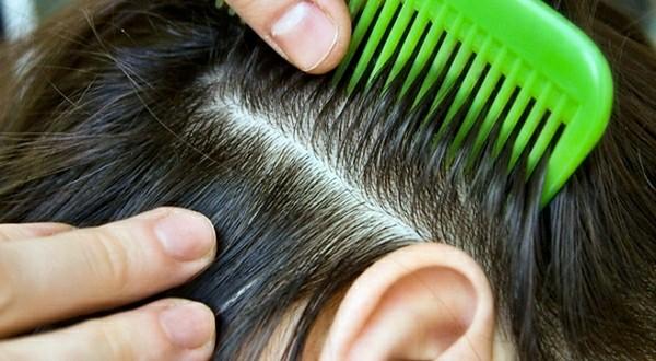 Витамины для женщины 30 лет для волос