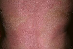 Псориаз - эритродермия псориатическая