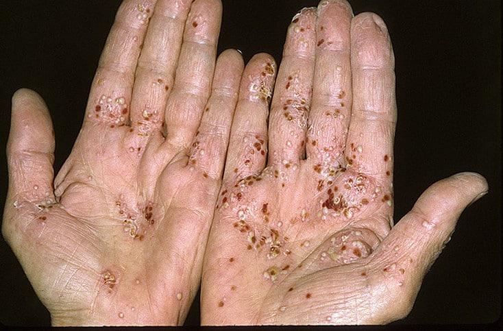 Псориаз ногтей является одним из разновидностей псориаза – распространенного хронического
