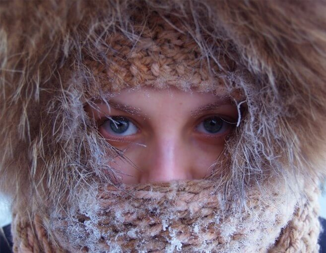 холодовая кропивница у девушки