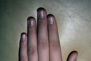 Дистрофия двадцати ногтей