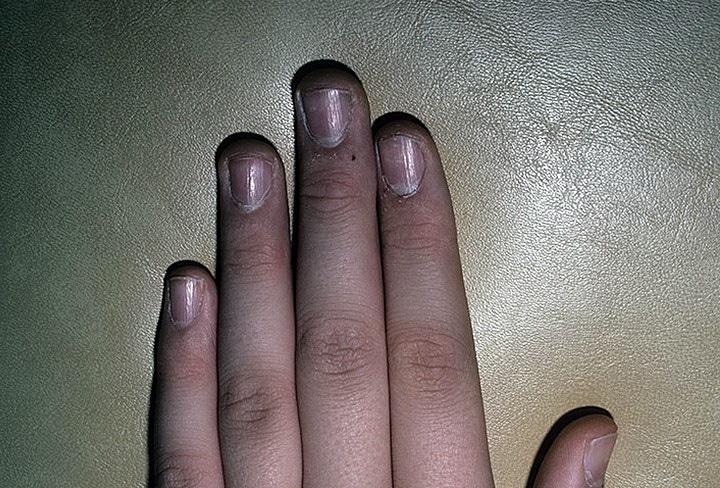 Блефарит Блефарит  причины симптомы и лечение Виды