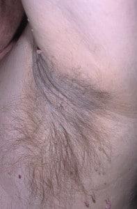 Кандидоз крупных складок кожи