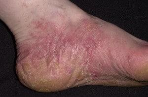 Дерматит аллергический на обувь