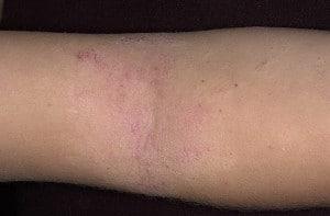 Атопический дерматит - детская стадия