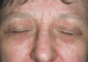 Дерматит аллергический на косметические средства