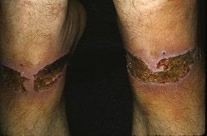 Артифициальный дерматит (патомимия)