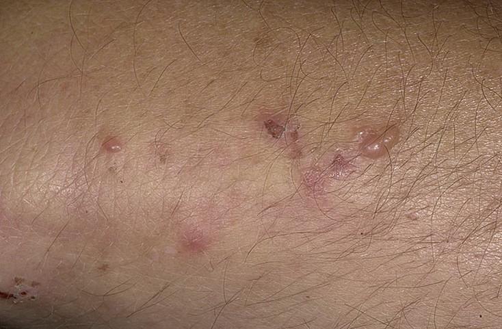 Глистные инвазии  причины появления лечение симптомы