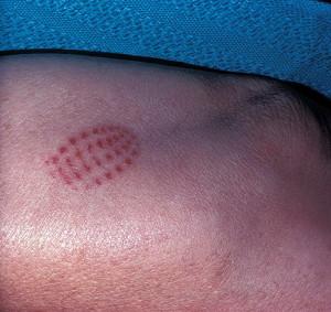 Дерматит от контакта с гусеницами (гусеничный дерматит)