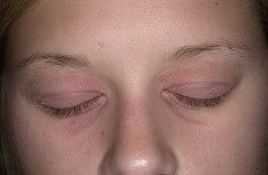 Атопический дерматит - взрослая стадия