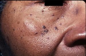 Папулёзный дерматоз чернокожих
