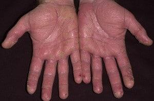 Экзема кистей рук