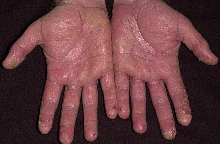 Псориаз кистей рук как лечить