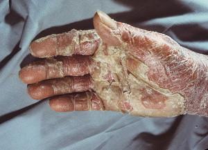 Эксфоллиативный дерматит (эритродермия Вильсона-Брока)