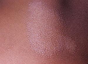 Лишай фолликулярный шиповидный (кератоз Крокера-Адамсона)