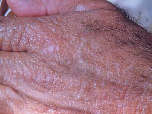 Гиалома (коллоидная дистрофия кожи)