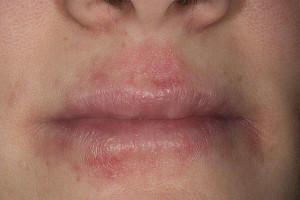 Как выглядит атопический дерматит