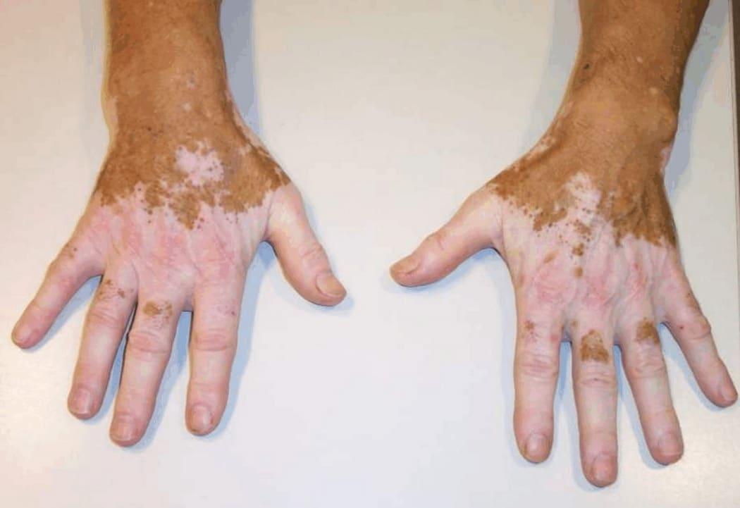 кожное заболевание пигментация