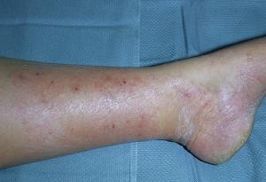 Гранулема Майокки (дерматофития)