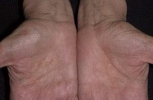 Микиды (дерматофитиды, ауточувствительный дерматит, id-реакция)