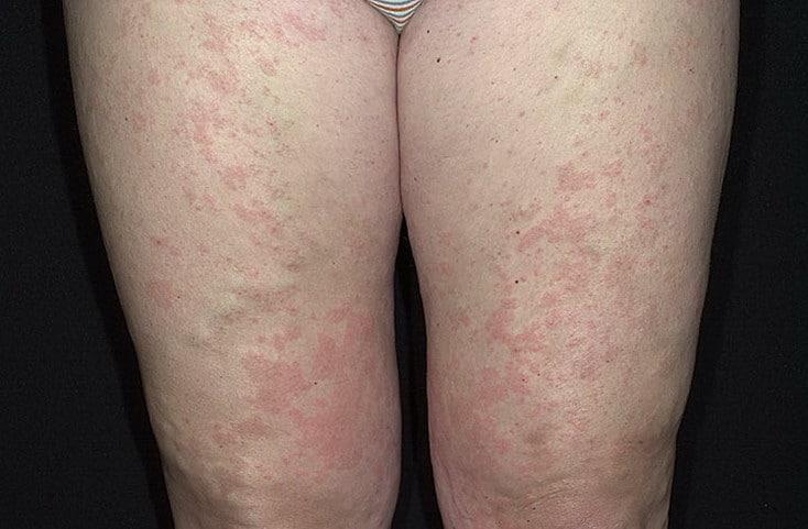Крапивница у взрослых симптомы и лечение фото как выглядит