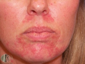 Нейродермит на лице лечение