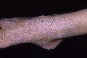 Нейродермит на ногах