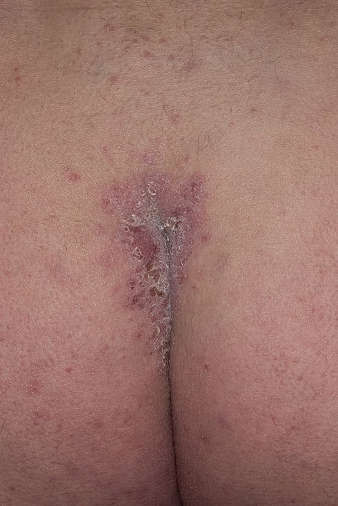 Лечение псориаза в старой руссе отзывы