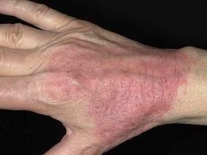 Нейродермит фото на руках