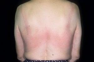 Латексная аллергия