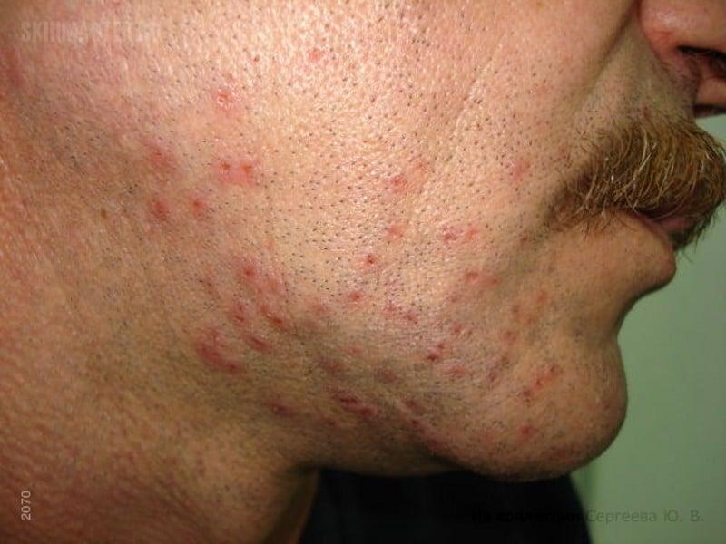 нервная аллергия симптомы фото