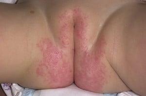 Пелёночный дерматит