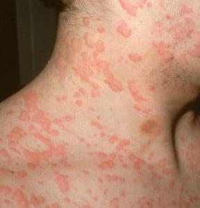 какие симптомы аллергии на собак
