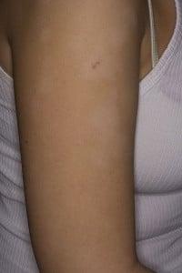 Простой лишай (Pityriasis alba)