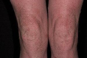Атопический дерматит симптомы