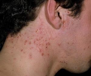 Атопический дерматит симптомы лечение