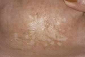 Лишай склероатрофический (болезнь белых пятен)