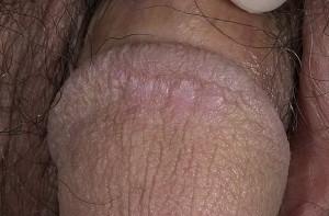 Красный плоский лишай - сыпь на половом члене