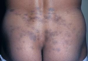 Стойкая дисхромическая эритема (пепельный дерматоз)