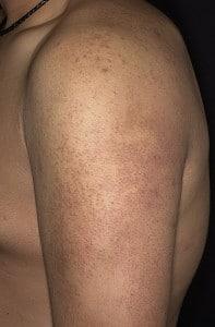 Фолликулярный кератоз (волосяной лишай)