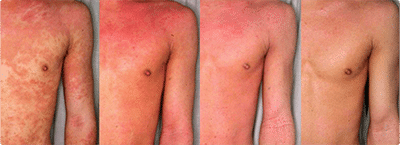 атопического дерматита