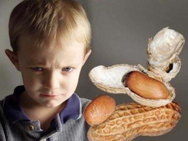 аллергии на арахис