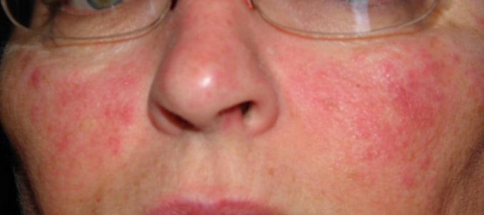 атопическим дерматитом