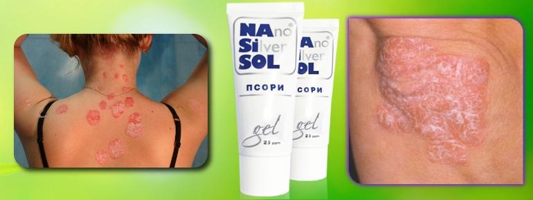 Nano silver sol псори